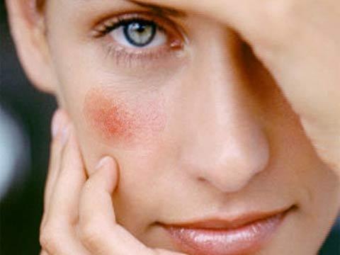 gomba vörös foltok az arcon miért iszik be az arc vörös foltokba, ha iszik
