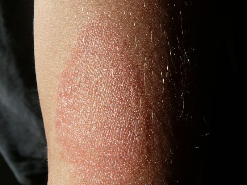 ha a hónalj alatt vörös foltok vannak és viszketnek krém skin-cap vélemények pikkelysömörhöz