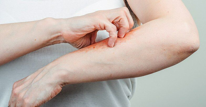 Don ízületi betegségben, Bechterew-kór