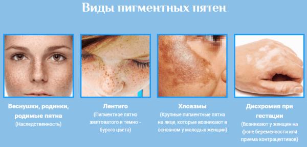 hogyan lehet megszabadulni az arc erek vörös foltjaitól pikkelysömör átvitel egészséges