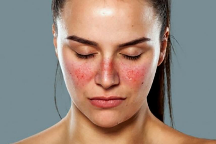 súlyos vörös foltok az arcon