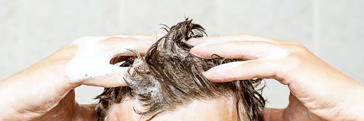 A fejbőr pszoriázisa - Felépítés