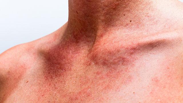 vörös foltok a nyakon és a vállakon viszketnek pikkelysömör kezelése imunofan véleményekkel