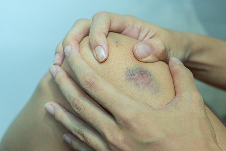 vörös foltok a nő lábain gyulladt plakkok pikkelysömör kezelésével