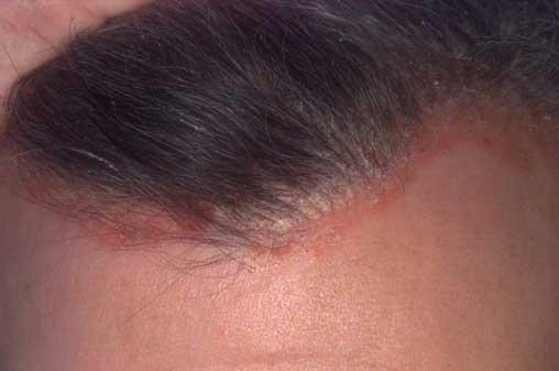 modern fejbőr psoriasis kezelése