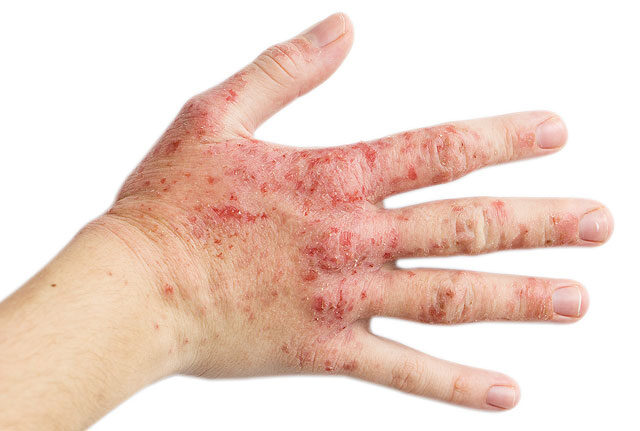 az ujján vörös folt hámlik és viszket