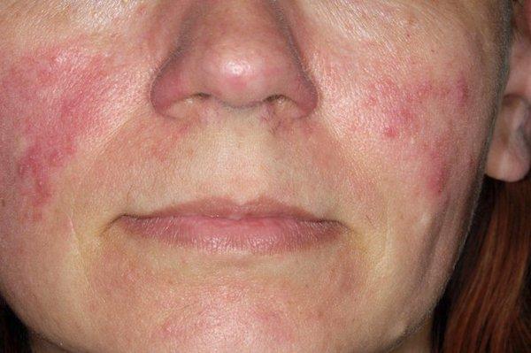 kenőcs az arc vörös foltjai után a horzsolások után