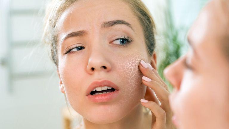 otthoni pikkelysömör kezelése az arcon foltok vörösen viszketnek a testen