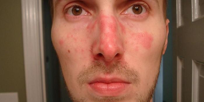vörös foltok az arcon a gyomorból egy vörös folt hámlik és viszket a szemhéjon