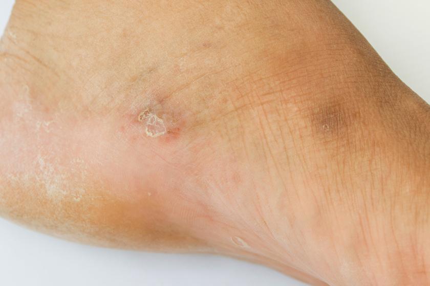 gomba a lábakon vörös foltok