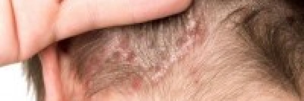pikkelysömör fülkezelés népi gyógymódokkal pikkelysömör kezelsi rend