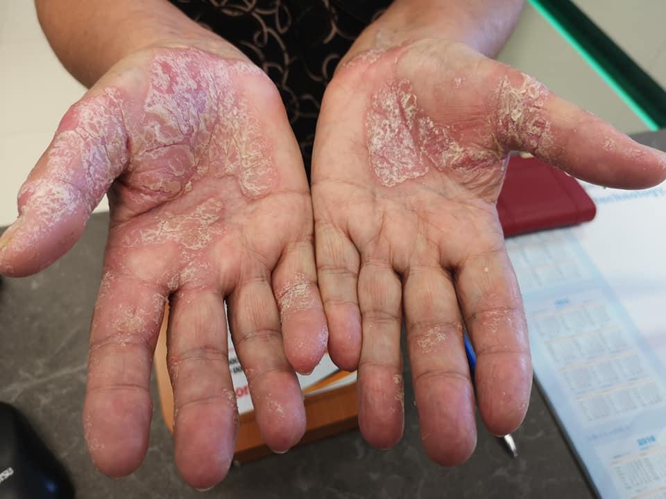 vörös folt a kezén érdes pikkelysömör tünetei kezelik