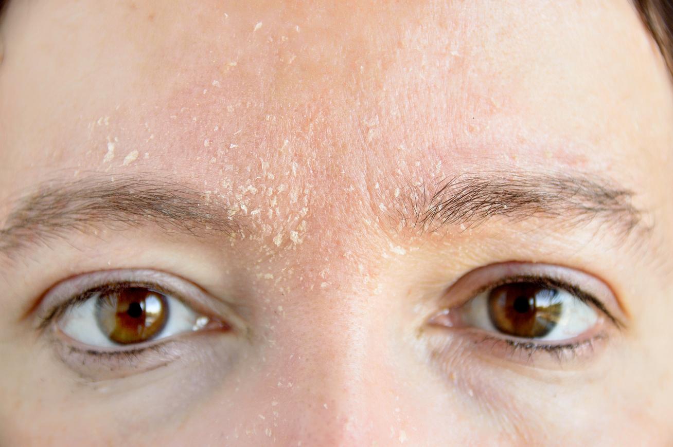 vörös foltok pikkelyesek a száj közelében pikkelysömör vulgáris. kezelés