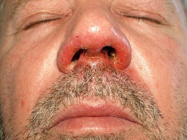 vörös foltok az arcon férfi fotó