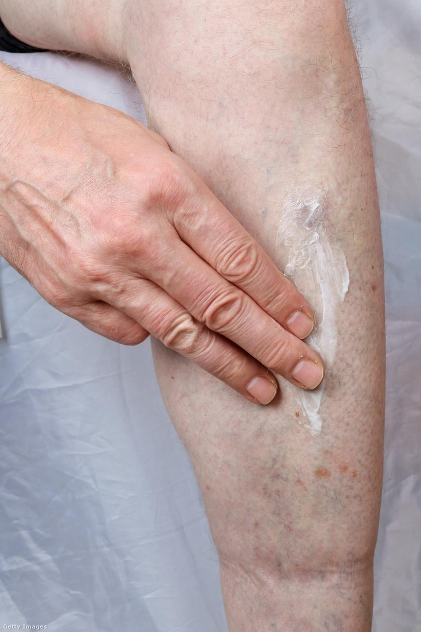 pikkelysömör kezelése on-clinic reviews