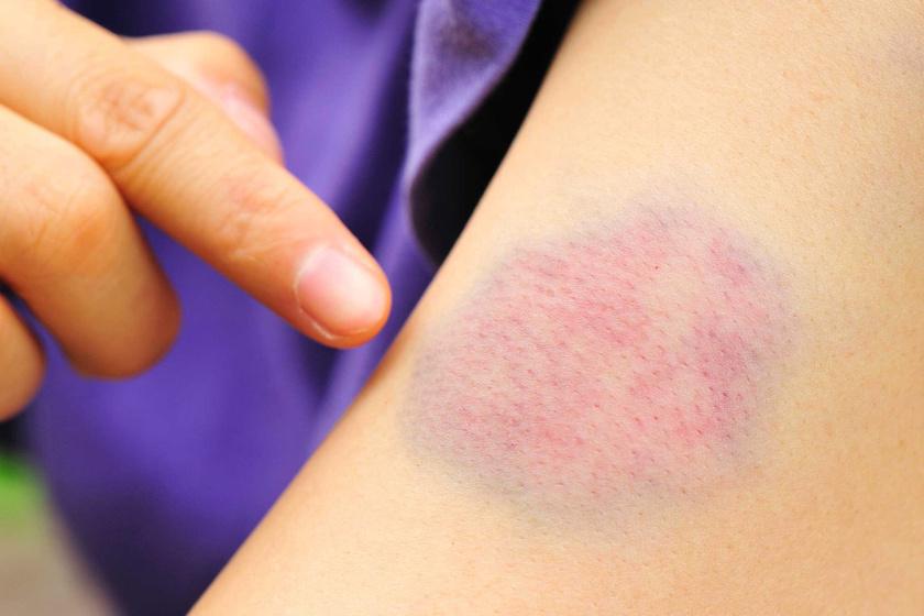 makeup4u.hu: Viszkető piros foltok: így kezelhető a csalánkiütés – Semmelweis Médiasarok