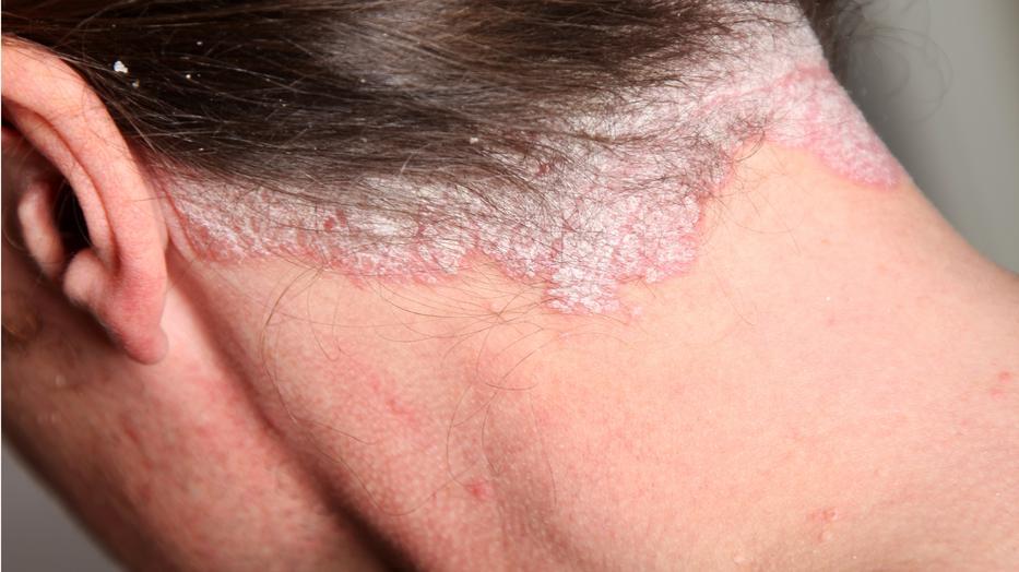 a fej fotó kezelése pikkelysömör