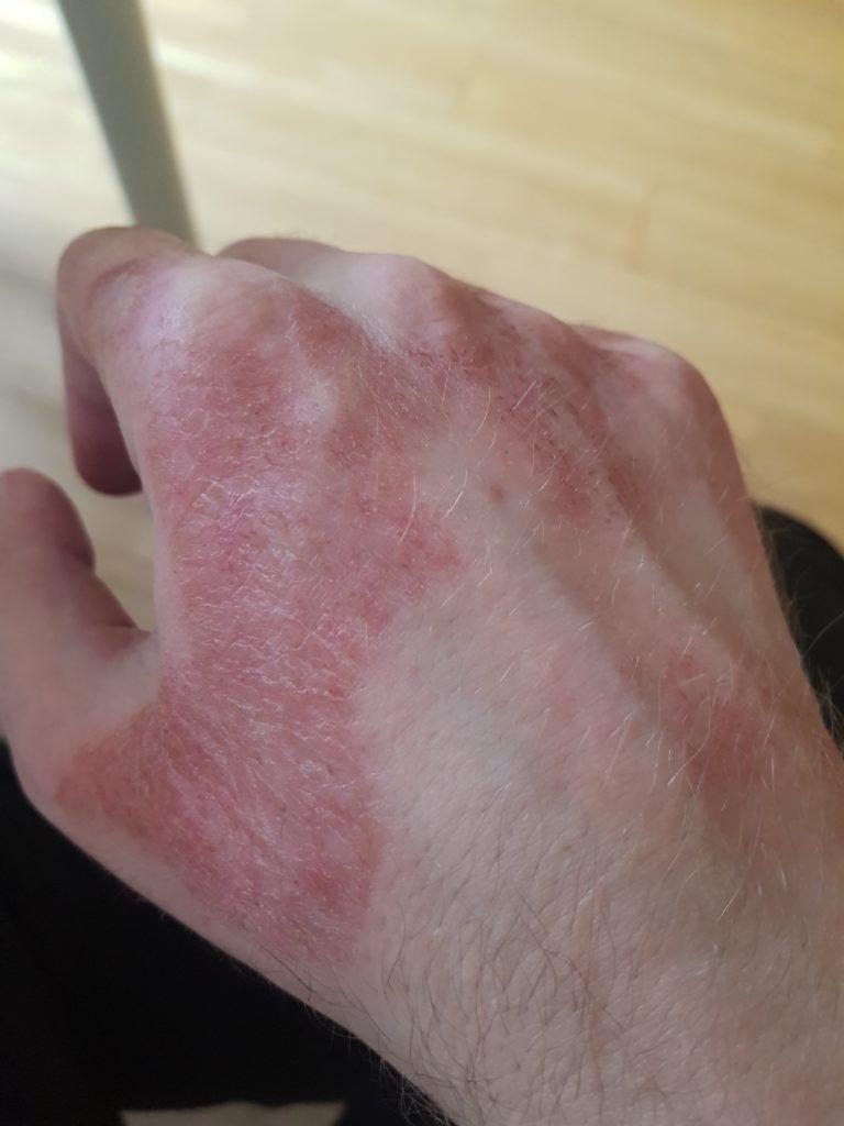zuzmó a kezén piros folt viszket