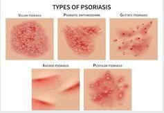 Pszoriázis kezelése - Egészségpláza webáruház