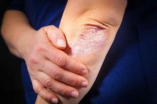 pikkelysömör kezelése a könyökön népi gyógymódokkal