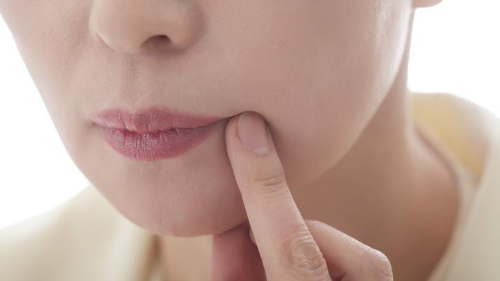 vörös foltok az orr körül, hogyan lehet eltávolítani pikkelysömör és ízületek mi a kapcsolata az ízületek kezelésében
