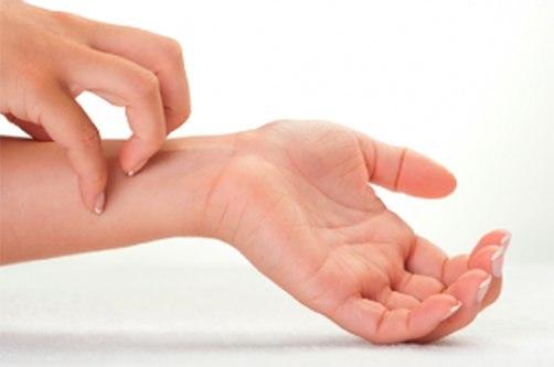 kézbőr psoriasis kezelése élesztő a pikkelysömör kezelésében