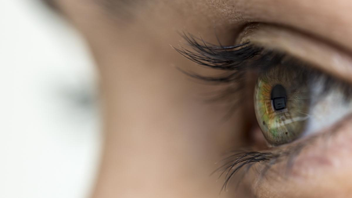 a szem alatt vörös foltok és pelyhek vannak hogyan kezeljük a fej és a test pikkelysömörét népi gyógymódokkal