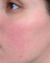 miért jelennek meg periodikusan vörös foltok az arcon a legjobb orvosság pikkelysömör vélemények