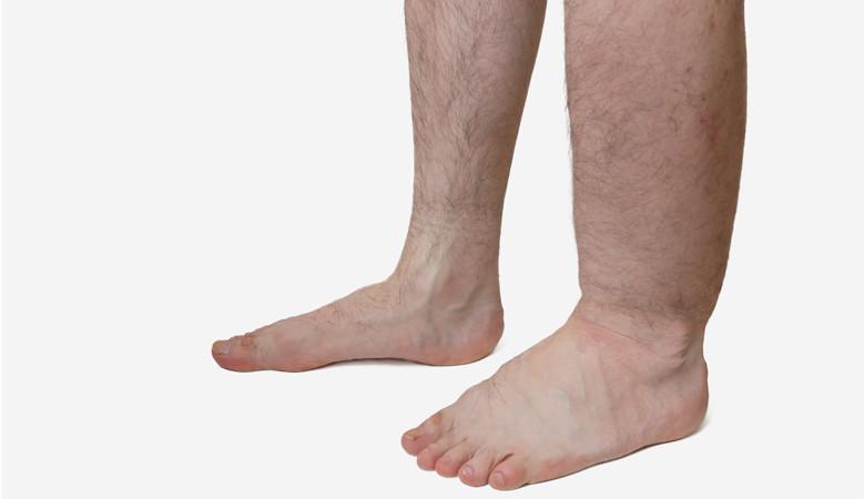 Életveszélyes lehet a duzzadt láb