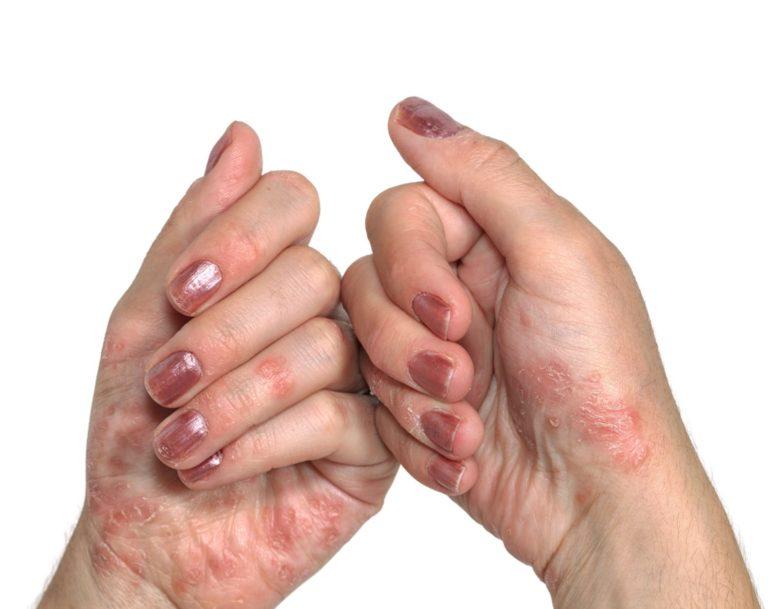 Gennyes pikkelysömör tüneteinek kezelésére