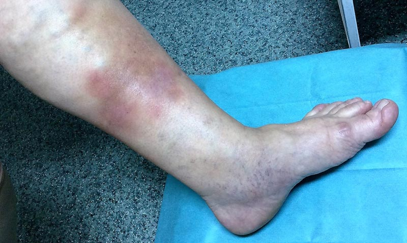 vörös foltok az alsó lábszáron visszérrel