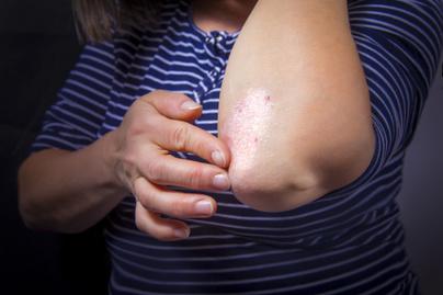 ha nagymamk, akik pikkelysömörrel kezelik piros folt a kezén fáj, ha megnyomják