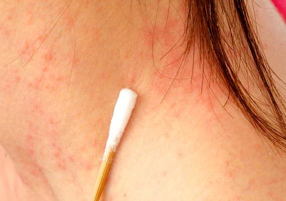 vörös folt jelent meg a nyakon viszket mi a pikkelysmr gygytsa