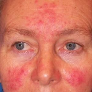vörös foltok és hámló bőr az arcon vörös foltok jelentek meg az arcon, mint kezelni