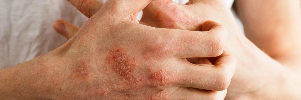 Bőrgyógyászat | Elite Clinic