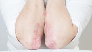 Psoriasis vulgaris | makeup4u.hu