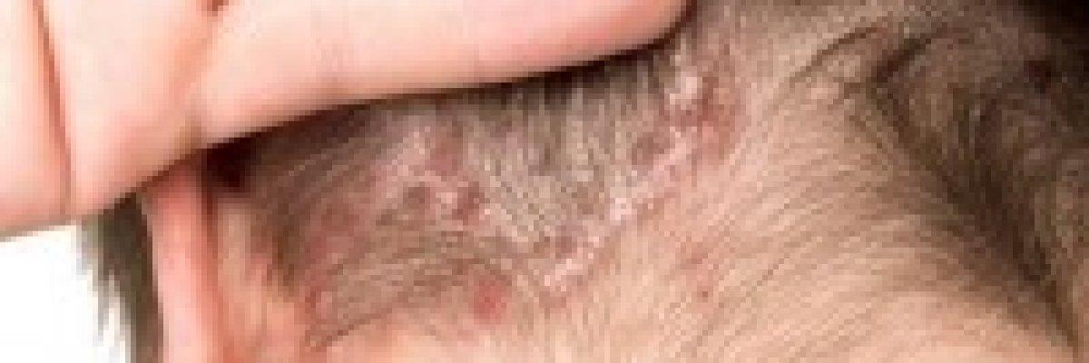 réz-szulfát pikkelysömör kezelésére