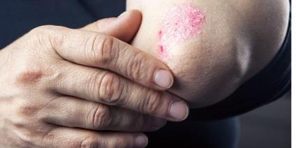 könyök pikkelysömör otthoni kezelse pikkelysömör a hepatitis C kezelse utn