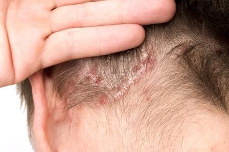kiütés a fejbőrön vörös foltok formájában pikkelysömör diéta és kezelés