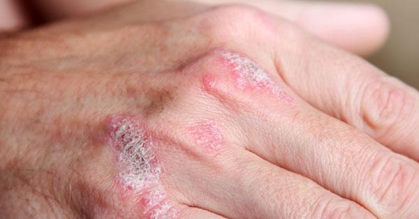 pikkelysömör a tenyerben hogyan kell kezelni piros foltok a kezeken a medence után