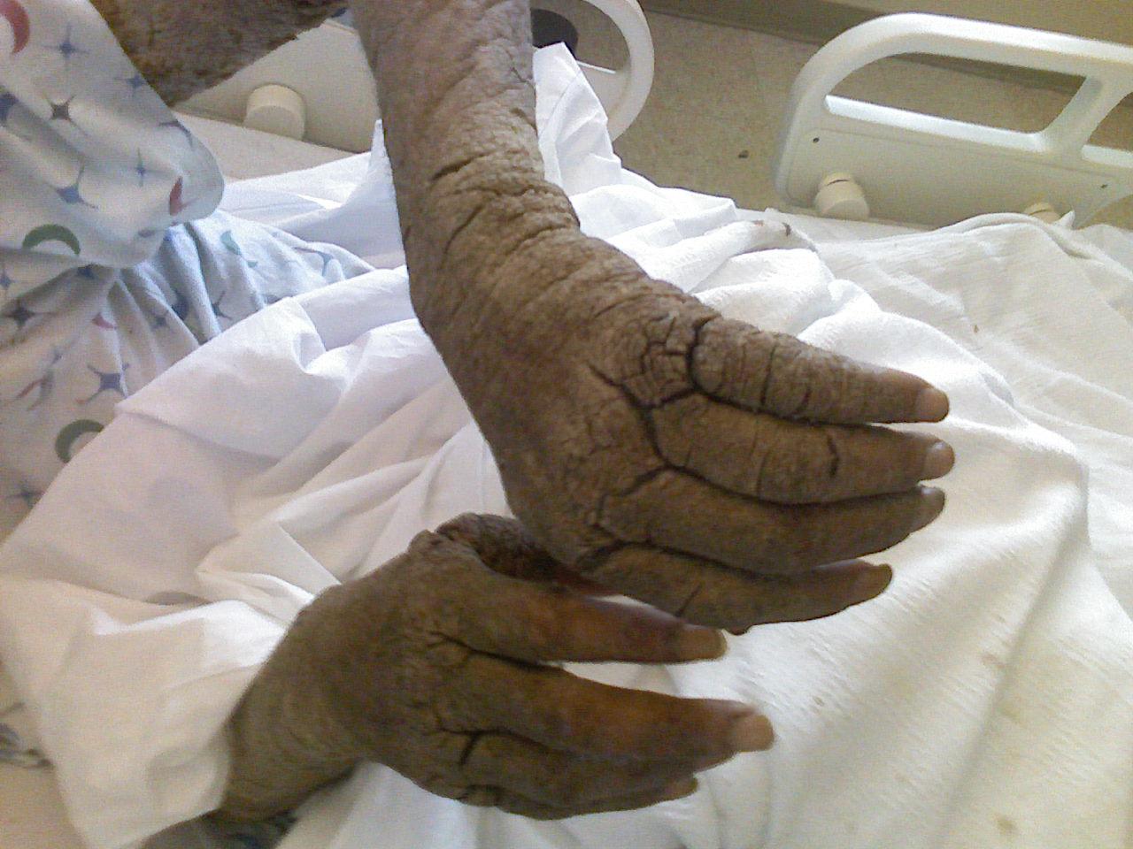 Repedezett bőr az ujjak a kéz pikkelysömör