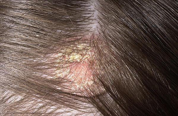 kiütés a fejbőrön vörös foltok formájában likopid vélemények a pikkelysömör kezelésében