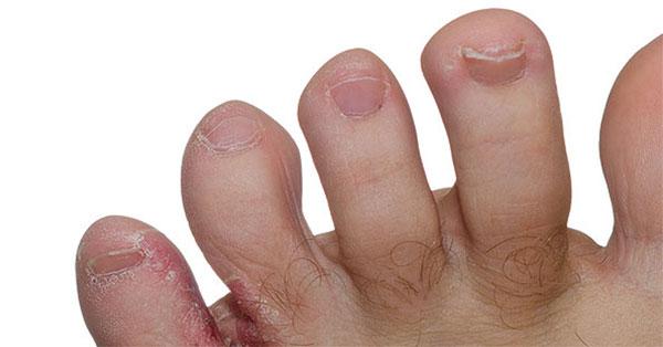 vörös foltok a lábakon és a lábujjakon diéta kezelése pikkelysömörhöz