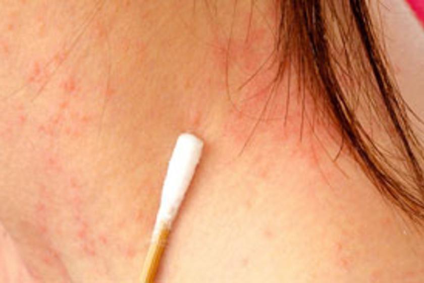 olyan betegségek, amelyekben vörös foltok jelennek meg a bőrön apró vörös foltok jelentek meg az arcon