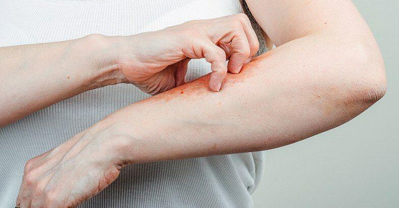 leghatkonyabb népi gyógymód a pikkelysömörhöz