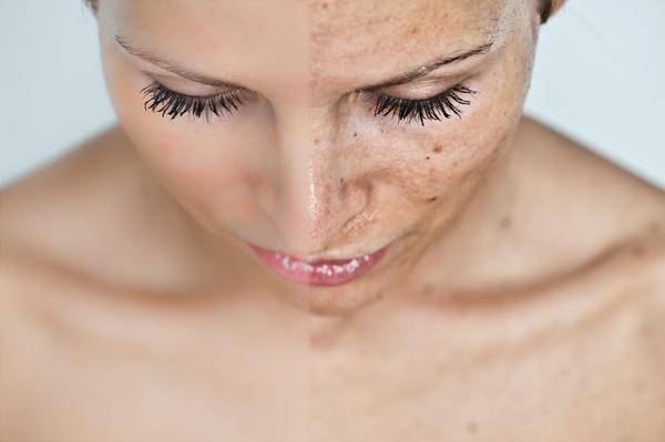 pikkelysömör arckezelés orvosság a fejbőr pikkelysömörére vélemények