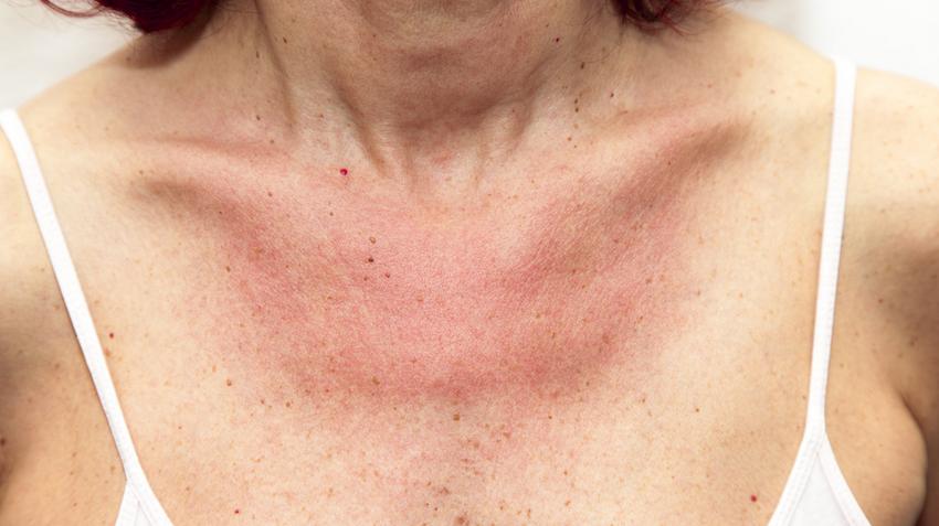 a bőr viszket és vörös foltok és hólyagok jelennek meg