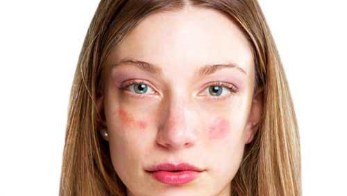 vörös foltok az arcon az akut pikkelysömör kezelésére gyógyszerek injekciók
