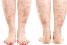 vörös foltok a nő lábain milyen gyógynövény képes gyógyítani a pikkelysömör