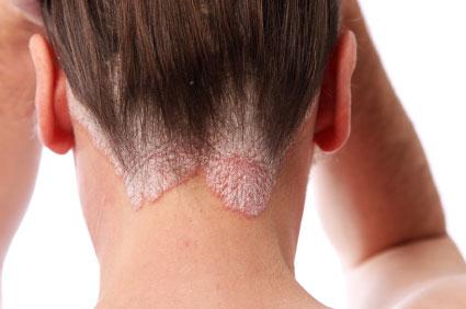 hogyan lehet pikkelysömör gyógyítani 3 nap alatt vörös foltok az arcon az ok a férfiak hámlik